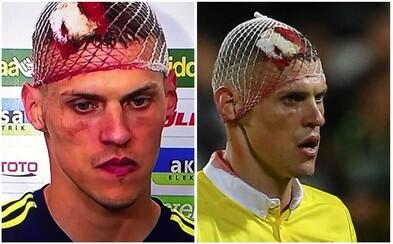 Martin Škrteľ utrpel počas zápasu nepríjemné poranenie hlavy, no odmietol striedať. Po skončení zápasu sa musel pobrať do nemocnice