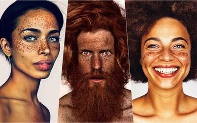 Máš pihy, zelené oči, zrzavé vlasy nebo třetí bradavku? Někteří lidé se od ostatních výrazně liší