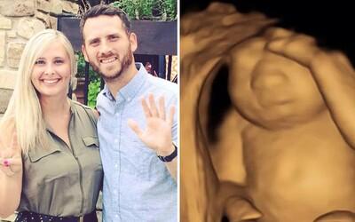 Matka sa rozhodla vynosiť dcéru so smrteľnou anomáliou, aby po narodení mohla darovať jej orgány a zachrániť životy ďalších ľudí