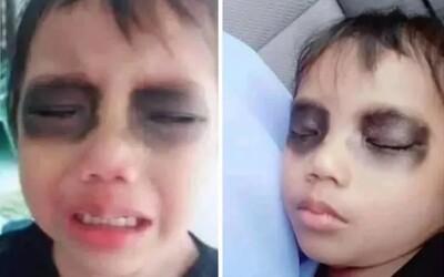 Matka synovi zbarvila oči na černo, když spal. Řekla mu, že to má z trávení času na mobilu
