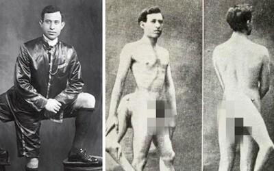 Měl tři nohy a dva pohlavní orgány. Francouzská prostitutka se dvěma vagínami ho prý chtěla pro sebe