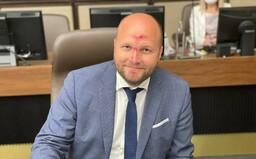 Minister obrany Jaroslav Naď prišiel na rokovanie vlády s krvavým čelom a nosom: Proste futbal