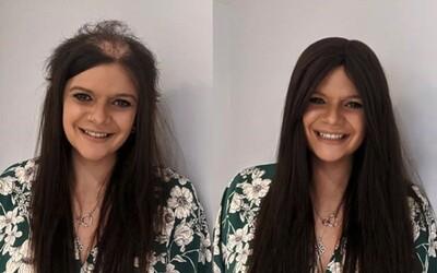 Mladá Britka si od dětství vytrhává vlasy. Na Instagramu odkrývá svůj boj s ojedinělou chorobou