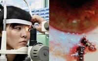 Mladé ženě z Tchaj-wanu žily v očích čtyři včelky
