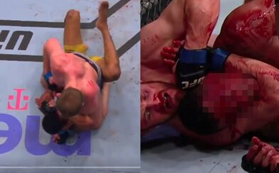 MMA bojovníkovi se po brutálním úderu loktem otevřelo čelo, tržná rána zakrvácela vše kolem