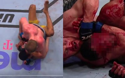 MMA bojovníkovi sa po brutálnom údere lakťom roztvorilo čelo, tržná rana zakrvácala všetko navôkol