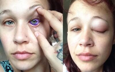 Modelce po pokaženém tetování oka hrozí, že přijde o zrak. Přítel, který ji tetoval, se s ní okamžitě rozešel