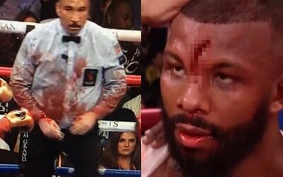 Možná nejhorší tržná rána v boxu. Boxerovi se v zápase rozevřelo čelo, brutálním zraněním zakrvácel i rozhodčího