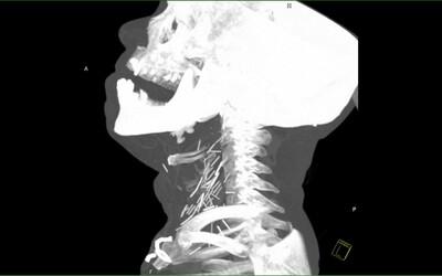 Muž měl v krku zaseknutých 17 jehel. Riziko 30letého užívání heroinu se projevilo i na jeho zdravotním stavu