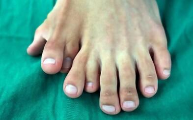 Muž se narodil s devíti prsty na noze. Operaci kvůli rodičům odkládal až do 21 let