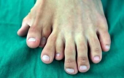 Muž sa narodil s deviatimi prstami na nohe. Operáciu kvôli rodičom odkladal až do 21 rokov