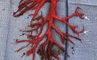 Muž vykašľal krvnú zrazeninu v tvare ako časť jeho pľúc. Intenzívny záchvat kašľa prekvapil aj lekárov