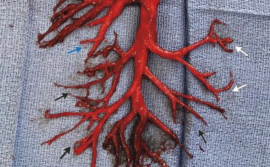 Muž vykašlal krevní sraženinu ve tvaru dýchacích cest. Intenzivní záchvat kašle překvapil i lékaře