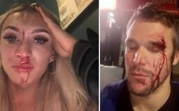 Muža udreli do tváre fľašou vína, lebo držal za ruku svojho priateľa. V Británii stúpa počet útokov na LGBT+ ľudí