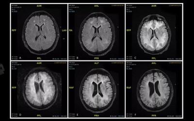 Muži po užití kokainu odumřela část mozku. Lékaři pro výstrahu zveřejnili skeny