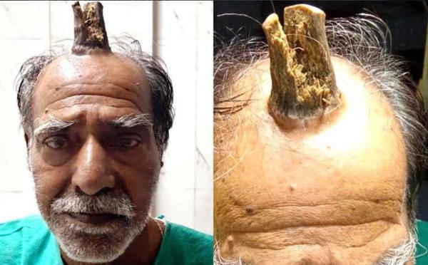 Mužovi chirurgicky odstránili 10-centimetrový roh. Vyrástol mu po tom, čo si narazil hlavu
