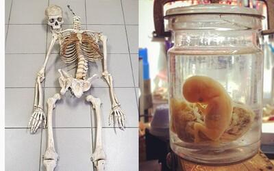 Na Instagrame si vieš kúpiť už aj ľudské pozostatky. Ceny za kosti či lebky užívatelia zverejňujú v popisoch