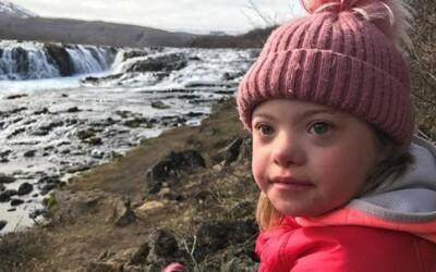 Na Islande takmer vyhubili Downov syndróm. Skoro 100 percent žien ukončí tehotenstvo, ak sa objaví pravdepodobnosť chromozómovej abnormality