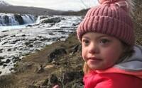 Na Islandu téměř vyhubili Downův syndrom. Skoro 100 procent žen ukončí těhotenství, pokud se objeví pravděpodobnost chromozomové abnormality
