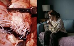 Na Slovensku potvrdili prvý prípad infekcie človeka pľúcnym červom