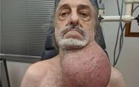 Nádor veľkosti futbalovej lopty mu výrazne ohrozoval život a lekári mu nechceli pomôcť. Po 7 hodinovej operácii je konečne preč