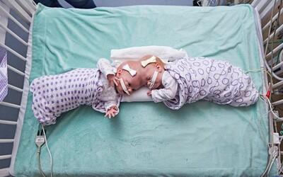 Narodili sa so spojenými hlavami. Desiatky lekárov sa siamské dvojčatá snažili rozdeliť 11 hodín