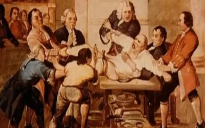 Nejrychlejší chirurg 19. století amputoval nohu za 25 sekund. Způsobil smrt pacienta, asistenta i přihlížejícího