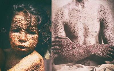Nejsmrtelnější virus v dějinách: Na pravé neštovice umřelo víc lidí než ve všech válkách v dějinách lidstva