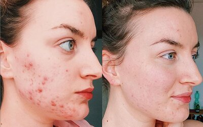 Největší mýty o akné: Slunce ti sice může vysušit vyrážky, ale způsobí ti ještě větší problémy