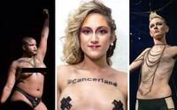 New York Fashion Week: Modelky, kterým vzala prsa rakovina, ovládly molo