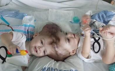 Newyorskí chirurgovia oddelili siamské dvojčatá so spoločnou časťou mozgu