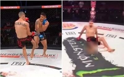Nic pro slabé žaludky: MMA bojovník si v zápase jedním kopem zlomil holenní i lýtkovou kost