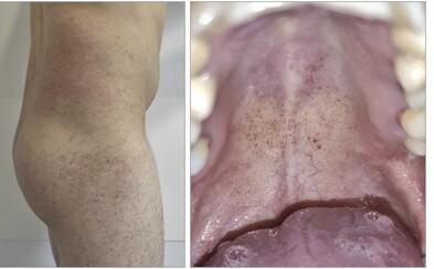 Nový príznak koronavírusu: po škvrnách na koži sa podobné rany objavujú aj v ústach pacientov