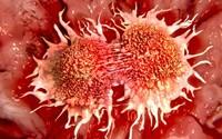 Nový test na rakovinu môže zmeniť svet. Či máš chorobu odhalí takmer okamžite