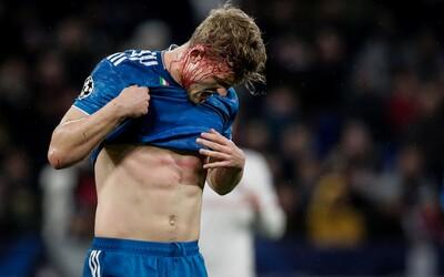 Obranca Juventusu skončil s krvavou hlavou, zápas však dokončil