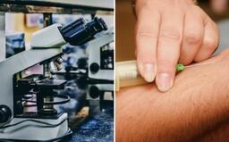 Obrovské pokroky v boji proti rakovine: vedci našli spôsob, ako ničiť konkrétne bunky pomocou alfa žiarenia, skúšajú aj krvný test