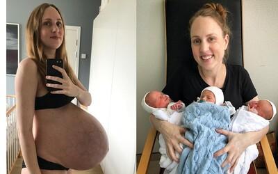 Odvážna mamička svetu ukázala, čo s jej telom narobili trojičky. Na bábätká doplatili svaly aj maternica