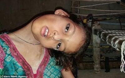 Pakistanské dievčatko musí žiť s hlavou v pravom uhle. Diagnóza z nej spravila vyvrheľa spoločnosti, pretože sa jej ľudia boja