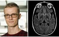 Počítač analyzujúci snímky mozgu lepšie ako skúsený lekár? Vďaka mladému slovenskému doktorandovi to môže byť onedlho realita