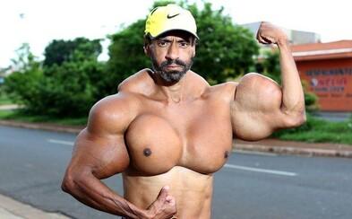 Podľahol syntholu a prezývajú ho brazílsky Hulk. Valdir je však so sebou spokojný a chce byť ešte väčší