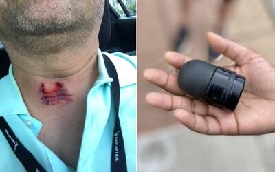 Policajt v USA strelil reportéra počas rozhovoru priamo do krku. Protestujúci sa sťažujú na brutálne zákroky