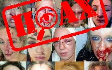 Polícia vyvrátila hoax o fotografiách zbitých žien, ktoré údajne napadli utečenci