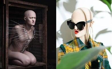 Postavila sa modelingovým stereotypom a porazila ich. Melanie trpí vzácnou genetickou poruchou, ale práve kvôli nej sa stala úspešnou modelkou
