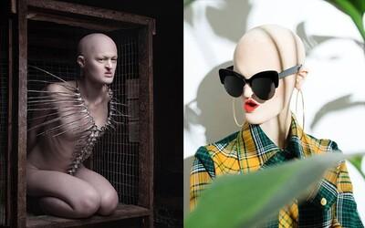 Postavila se modelingovým stereotypům a porazila je. Melanie trpí vzácnou genetickou poruchou, ale právě díky ní se stala úspěšnou modelkou