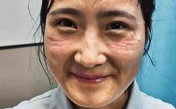 Pot, otlaky na tváři a vyčerpání: Takto vypadají zdravotní sestry, které pečují o pacienty nakažené koronavirem v Číně