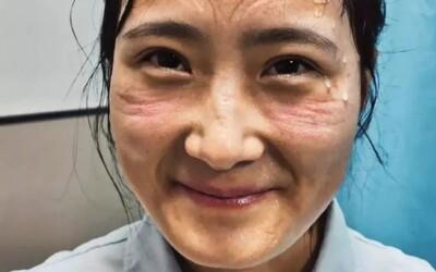 Pot, otlaky na tvári a vyčerpanie: Takto vyzerajú zdravotné sestry, ktoré sa starajú o pacientov nakazených koronavírusom v Číne