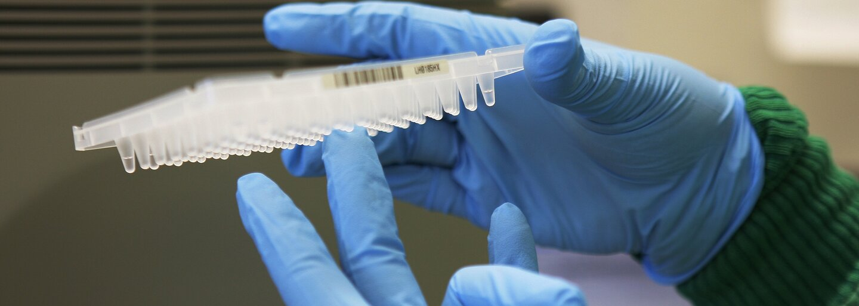 Pozreli sme sa do laboratória, kde sa testujú odobraté vzorky na  koronavírus