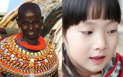 Pre nás nepochopiteľná, pre nich unikátna. Krásu predstavujú zjazvené telá Afričaniek aj ázijská žiarivo biela pleť