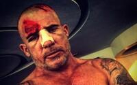 Predstaviteľ Lincolna Burrowsa utrpel na pľaci Prison Break zranenie hlavy. Pozdrží sa kvôli tomu natáčanie?