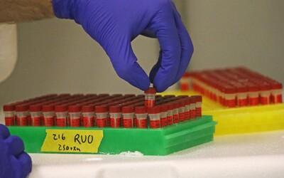 Přenos koronaviru přes povrchy je prý málo pravděpodobný. Německo zkoumalo přes 70 domácností, kde žili nakažení